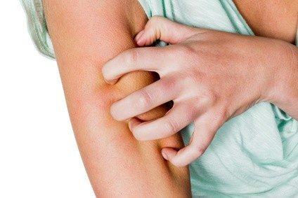 Psoriasis kann den Berufsweg einschneidend verändern. Foto: Gina Sanders - Fotolia.com